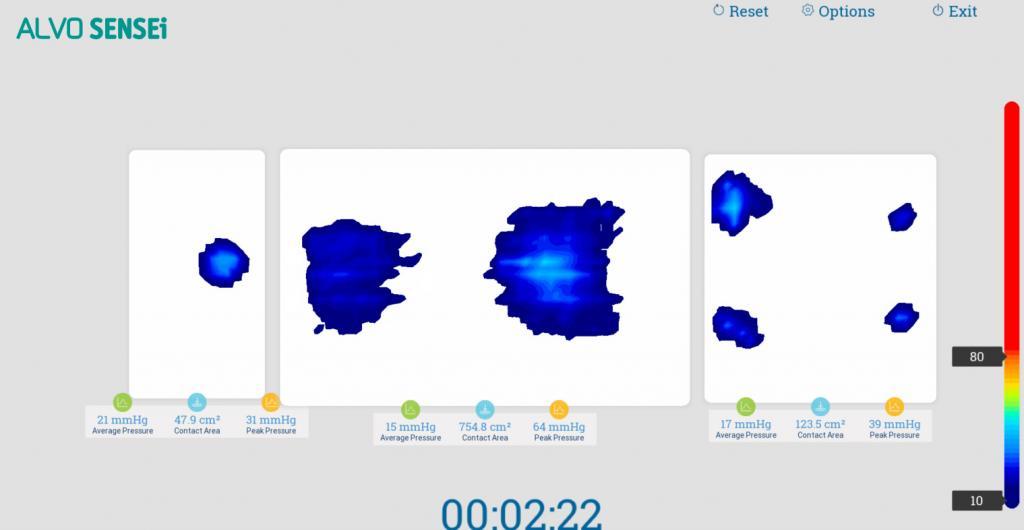 ALVO SENSEi - Śródoperacyjne mapowanie nacisków w czasie rzeczywistym